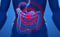 Кровотечение в кишечнике: причины, симптомы и лечение