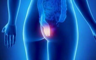 Проктит: симптомы и лечение