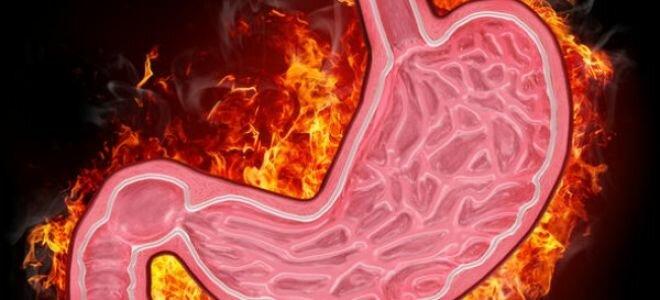 Антрум гастрит: симптомы, лечение и диета