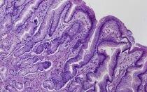 Как лечить кишечную метаплазию желудка